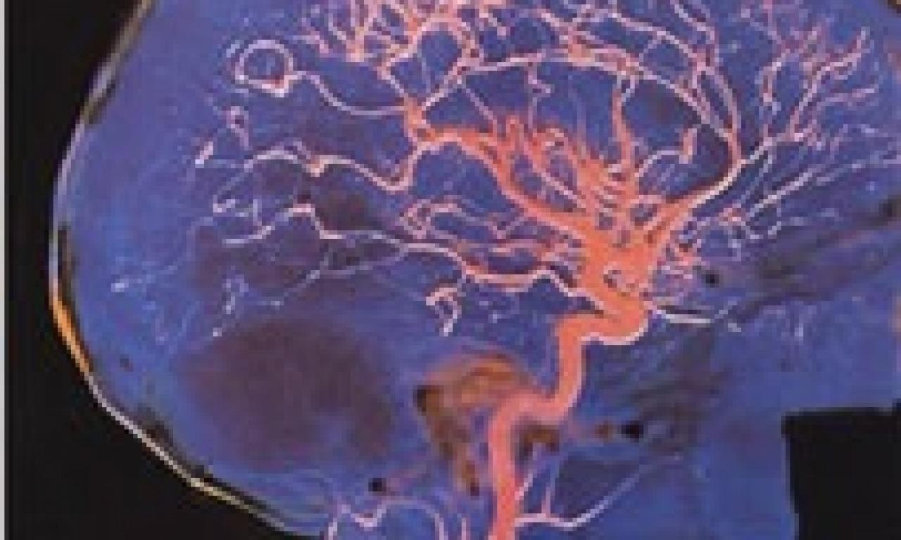 Il cervello: ieri, oggi, domani